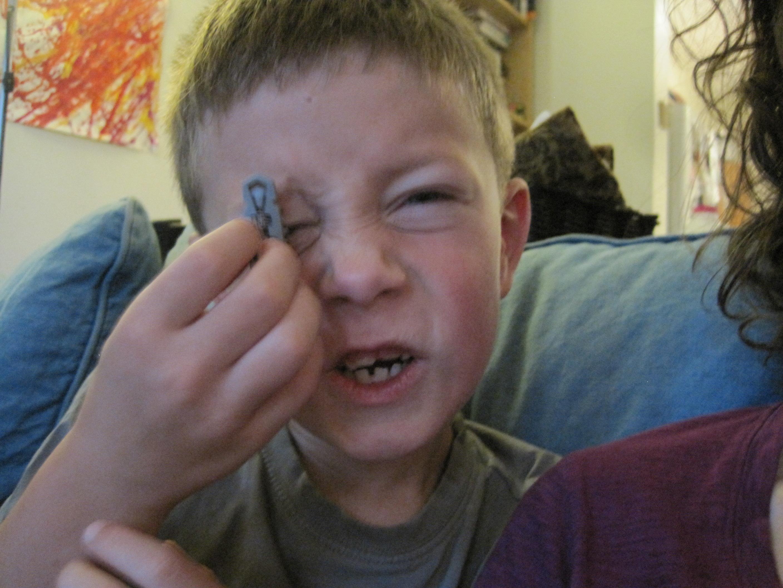 Arlo + hexbug on his eye.